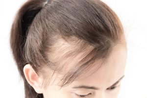 Managing PCOS Associated Hair Loss