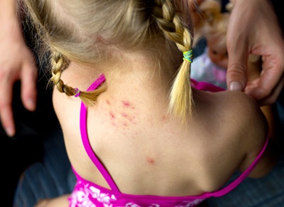 Caring for Your Baby's Eczema Through the Winter Months