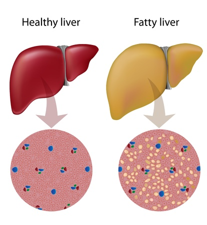 The Role Of The Liver in Treating Hormone Disorders