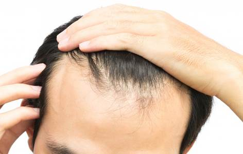 Topical Applications for Hair Loss