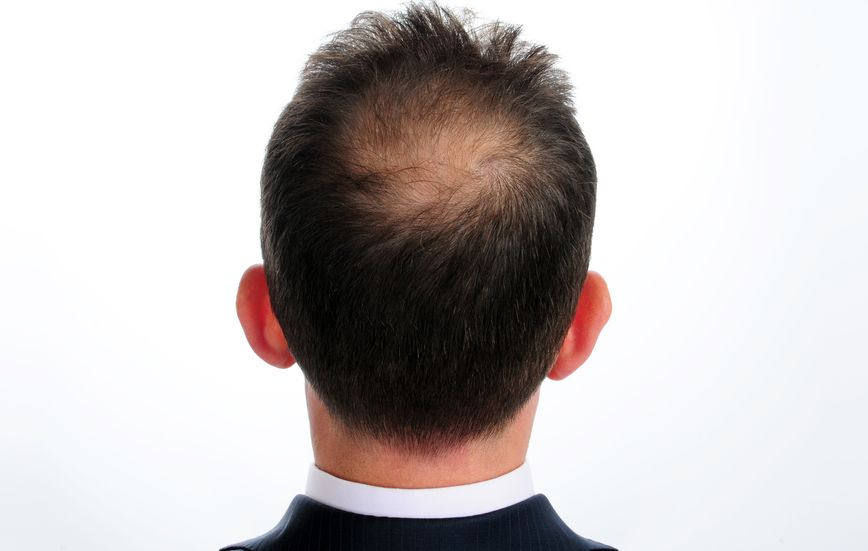 Looking for a boost in hair growth?  Have you considered PRP (platelet rich plasma) therapy?