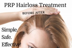 Hair Transplants and PRP